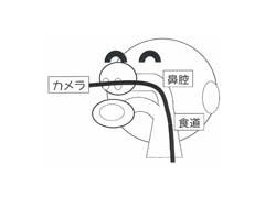 鼻から入れる胃内視鏡検査